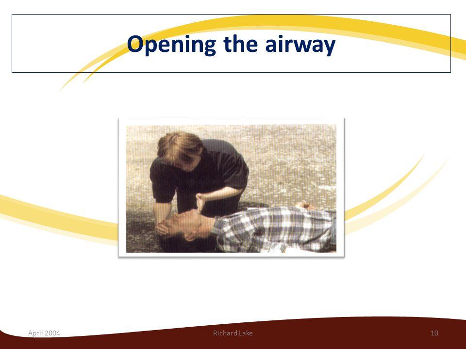 April 2004Richard Lake10 Opening the airway