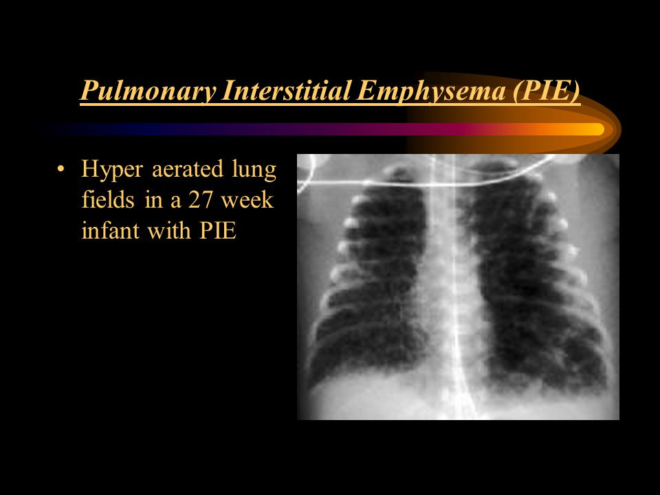 Pulmonary Interstitial Emphysema (PIE) Hyper aerated lung fields in a 27 week infant with PIE