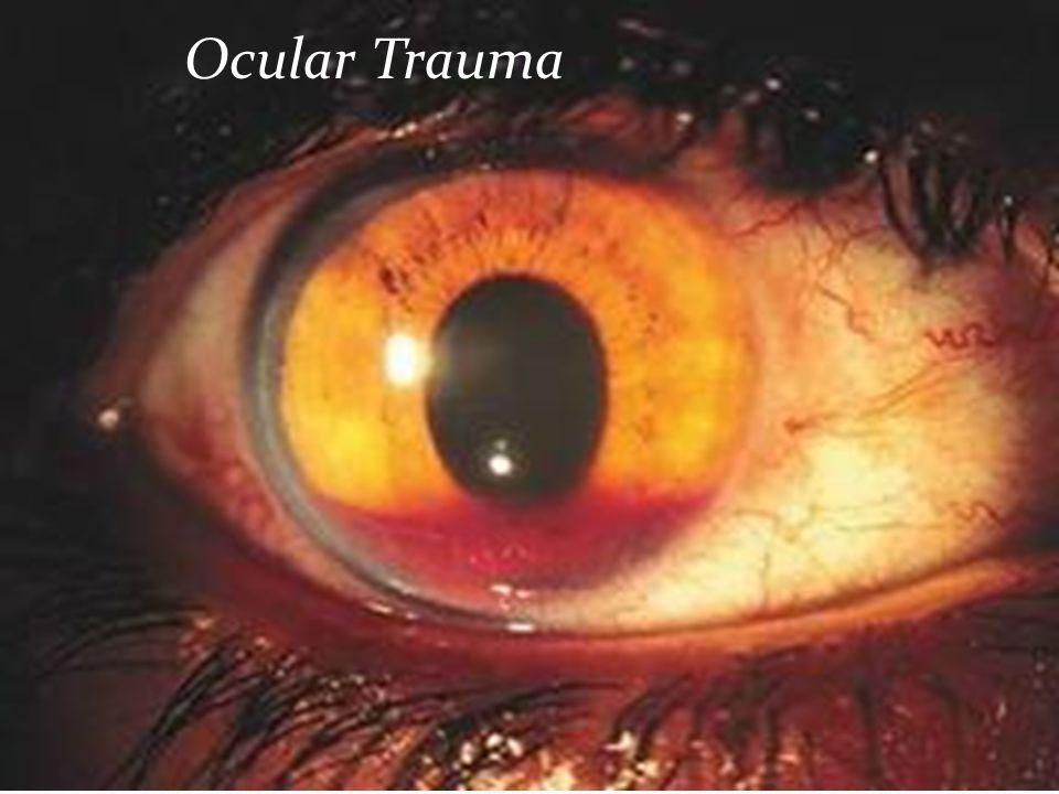 Ocular Trauma