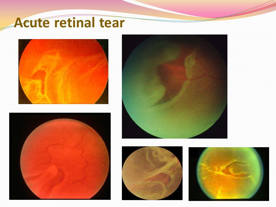 Acute retinal tear