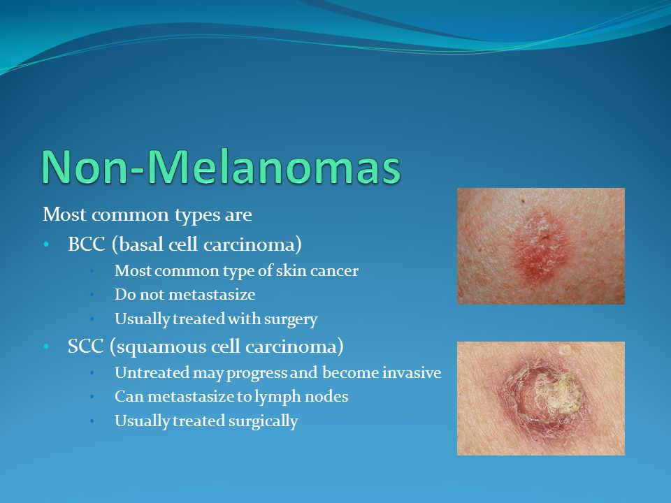 Most common types are BCC (basal cell carcinoma) Most common type of skin cancer Do not metastasize Usually treated with surgery SCC (squamous cell carcinoma) Untreated may progress and become invasive Can metastasize to lymph nodes Usually treated surgically