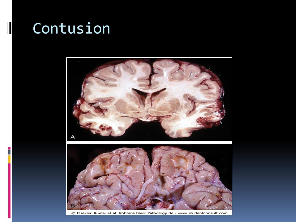 Diffuse Axonal Injury  Injury of axons in deep white matter of brain  Twisting/shearing of axons  Can be caused by angular acceleration alone  Shaken baby syndrome  Common cause of coma after trauma(responsible for the initia loss of consciousness in patients with epidural bleeds)