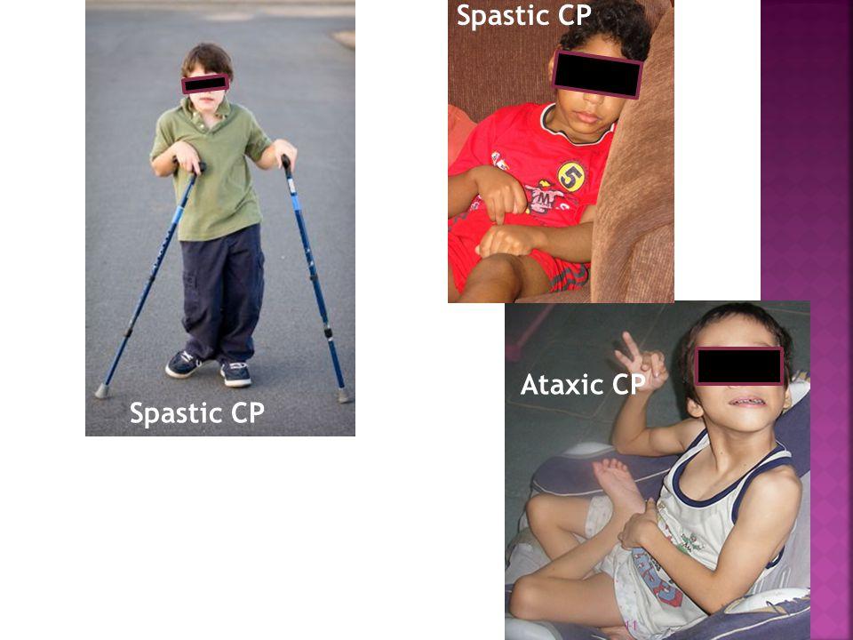 Ataxic CP Spastic CP 11