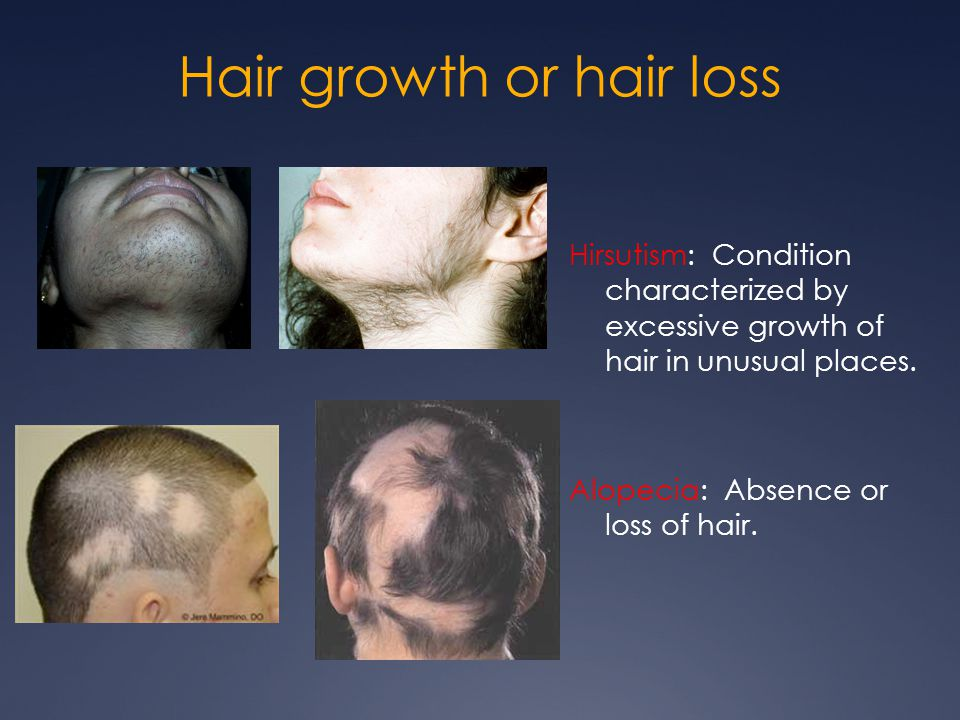 Hair growth or hair loss Hirsutism: Condition characterized by excessive growth of hair in unusual places. Alopecia: Absence or loss of hair.