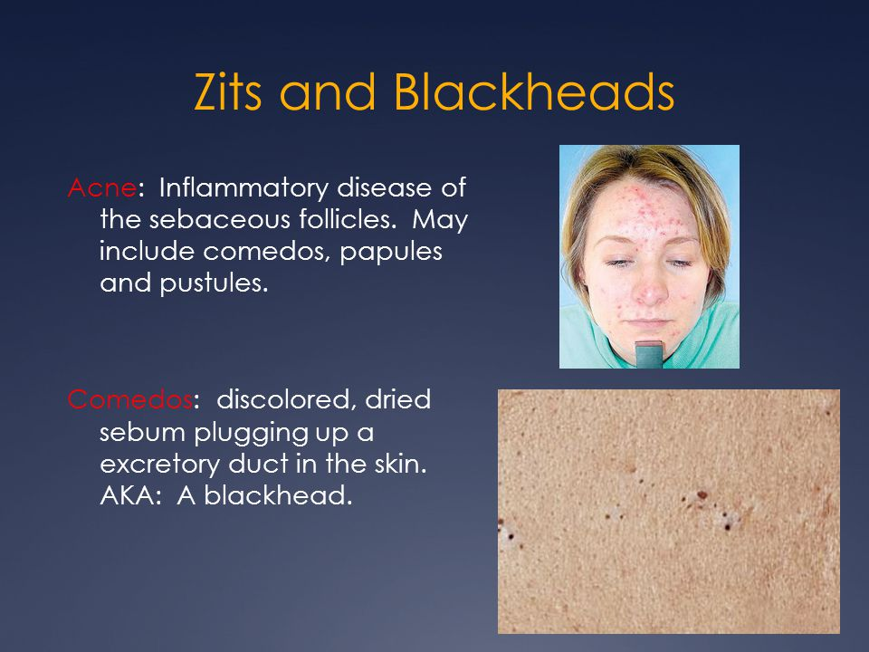 Zits and Blackheads Acne: Inflammatory disease of the sebaceous follicles. May include comedos, papules and pustules. Comedos: discolored, dried sebum