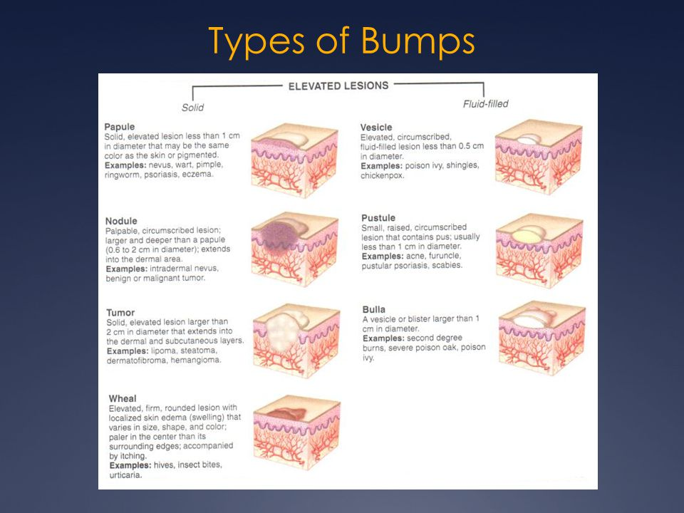 Types of Bumps