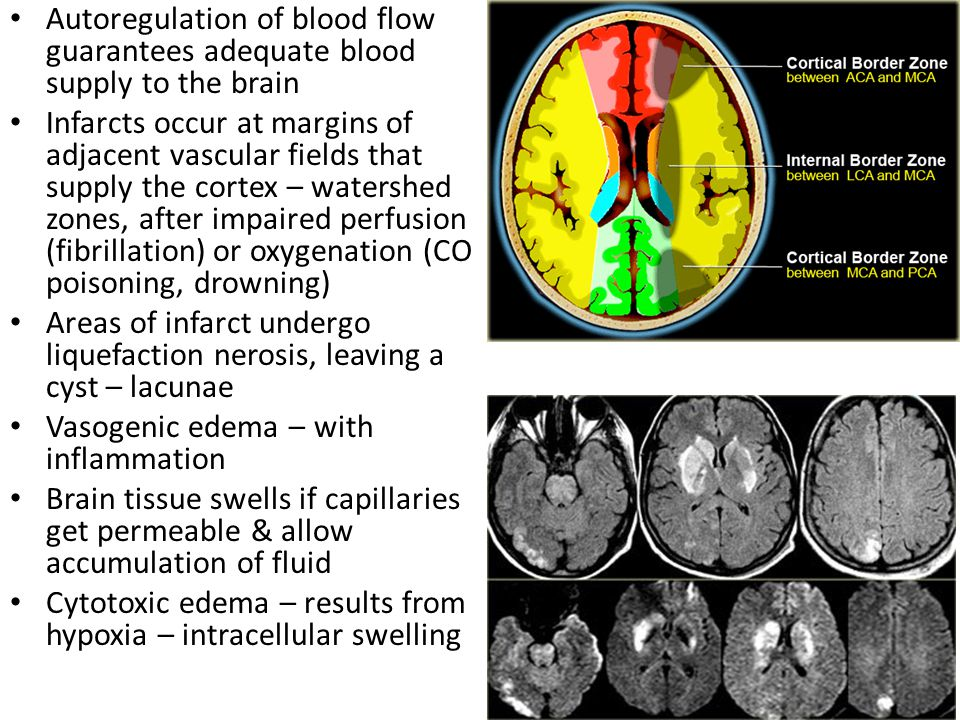 Expansion of brain, CSF, blood in the skull can increase intracranial pressure, impair perfusion, compress, shift or tear tissue, herniation can occur Compensations include decreased CSF & blood volume, with eventual hypoxia that increase blood pressure, eventually coma & death Oversecretion, impaired absorption, blocked circulation of CSF expands the ventricles – hydrocephalus – alleviated by shunting