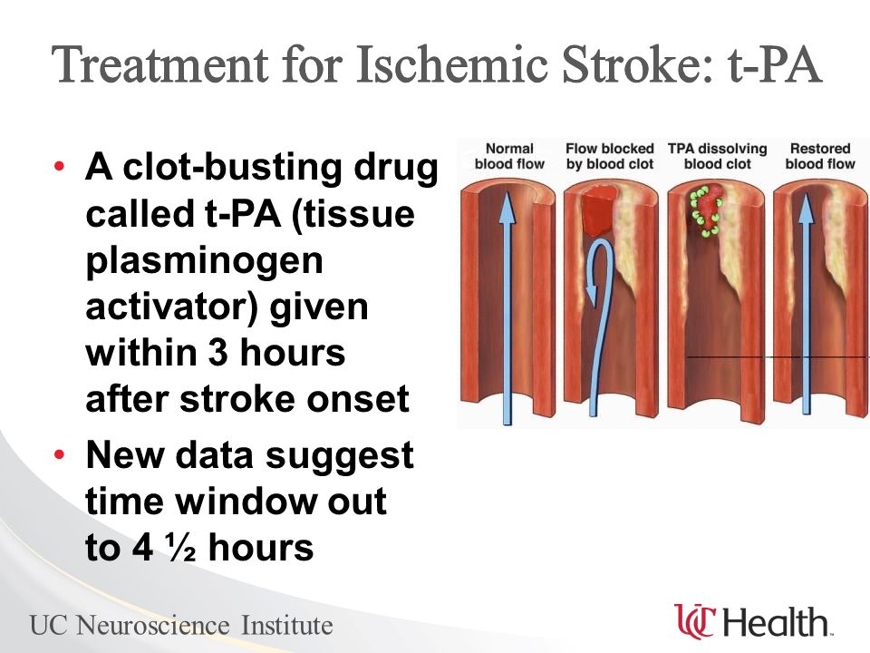 UC Neuroscience Institute A clot-busting drug called t-PA (tissue plasminogen activator) given within 3 hours after stroke onset New data suggest time window out to 4 ½ hours