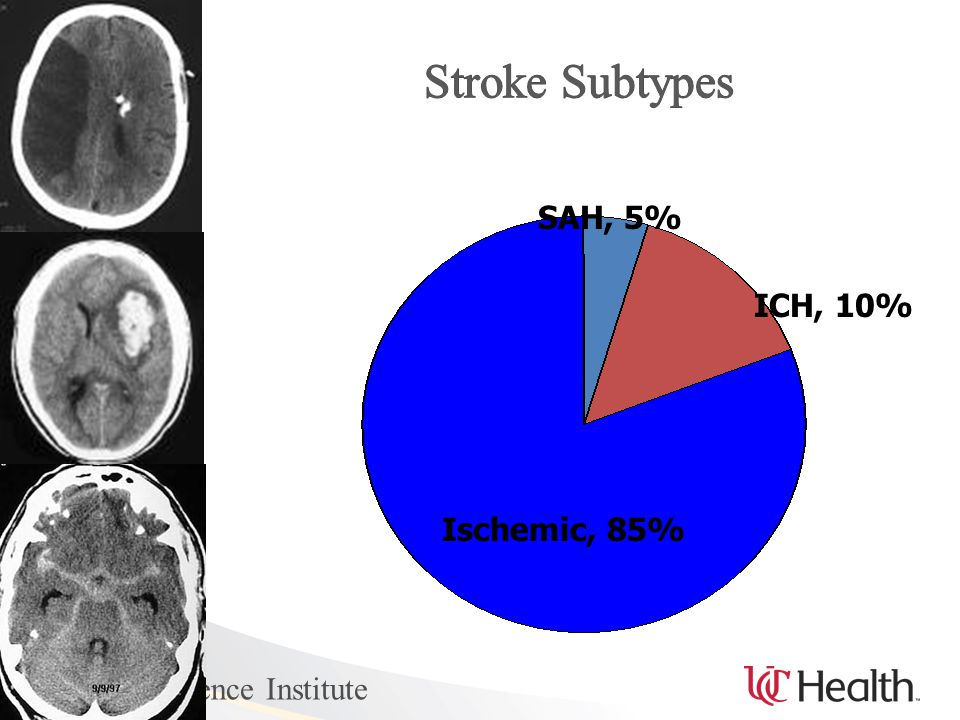 UC Neuroscience Institute Ischemic, 85% ICH, 10% SAH, 5%
