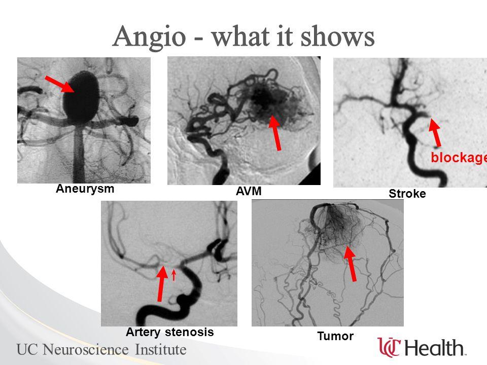Aneurysm AVM Artery stenosis Tumor Stroke blockage