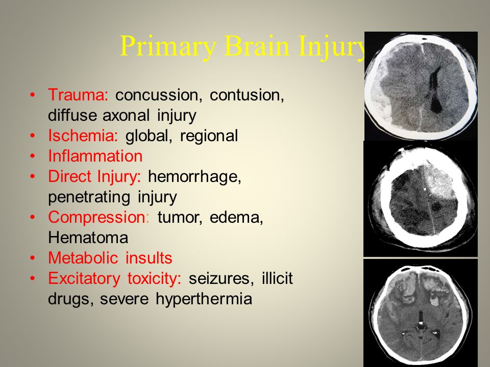 Primary Brain Injury Trauma: concussion, contusion, diffuse axonal injury Ischemia: global, regional Inflammation Direct Injury: hemorrhage, penetrating injury Compression: tumor, edema, Hematoma Metabolic insults Excitatory toxicity: seizures, illicit drugs, severe hyperthermia