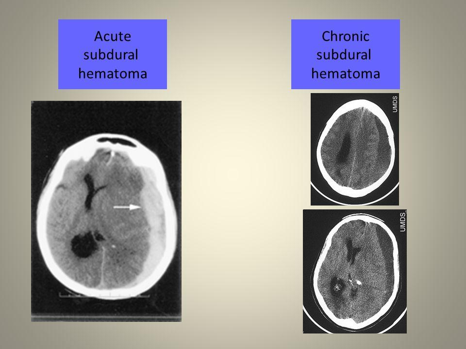 Acute subdural hematoma Chronic subdural hematoma