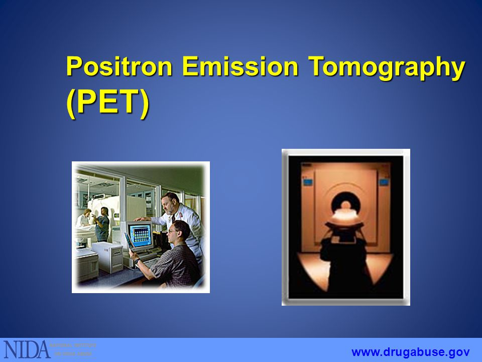Positron Emission Tomography (PET) www.drugabuse.gov