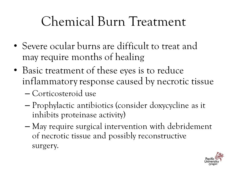 Chemical Burn Treatment Severe ocular burns are difficult to treat and may require months of healing Basic treatment of these eyes is to reduce inflam