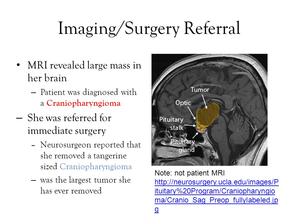 Imaging/Surgery Referral MRI revealed large mass in her brain – Patient was diagnosed with a Craniopharyngioma – She was referred for immediate surger