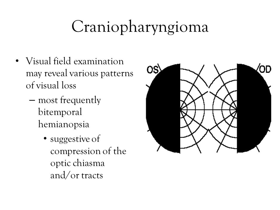 Craniopharyngioma Visual field examination may reveal various patterns of visual loss – most frequently bitemporal hemianopsia suggestive of compression of the optic chiasma and/or tracts