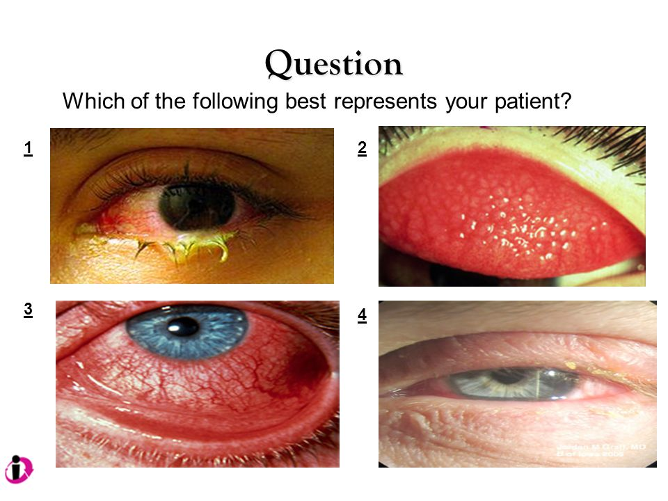 Question 12 3 4 Which of the following best represents your patient?