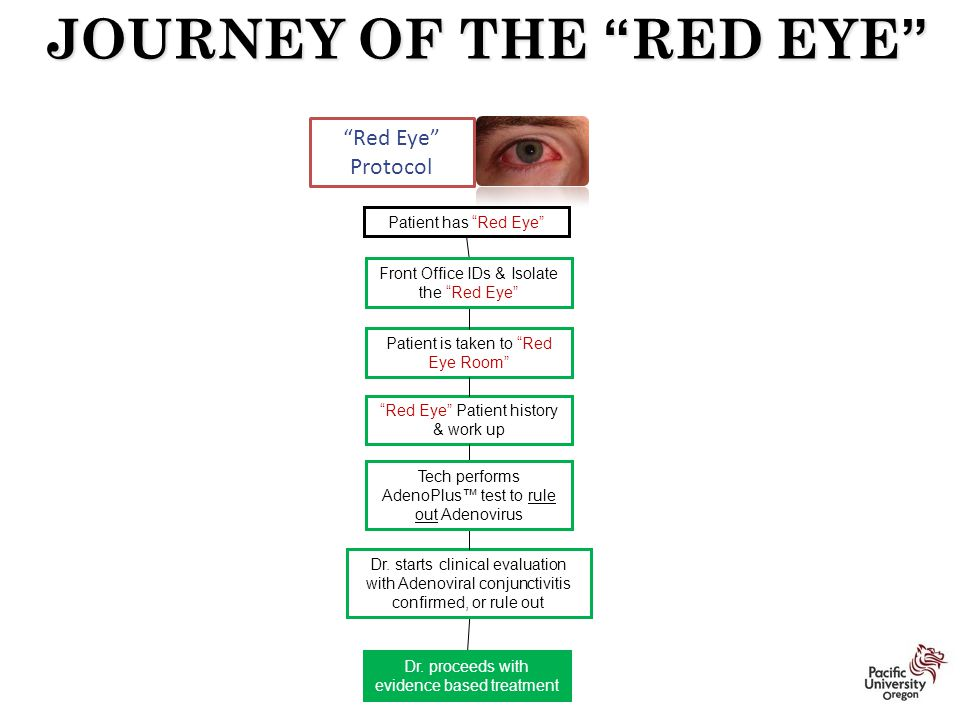 "Patient has ""Red Eye"" ""Red Eye"" Protocol JOURNEY OF THE ""RED EYE"" Patient is taken to ""Red Eye Room"" Dr. proceeds with evidence based treatment ""Red E"