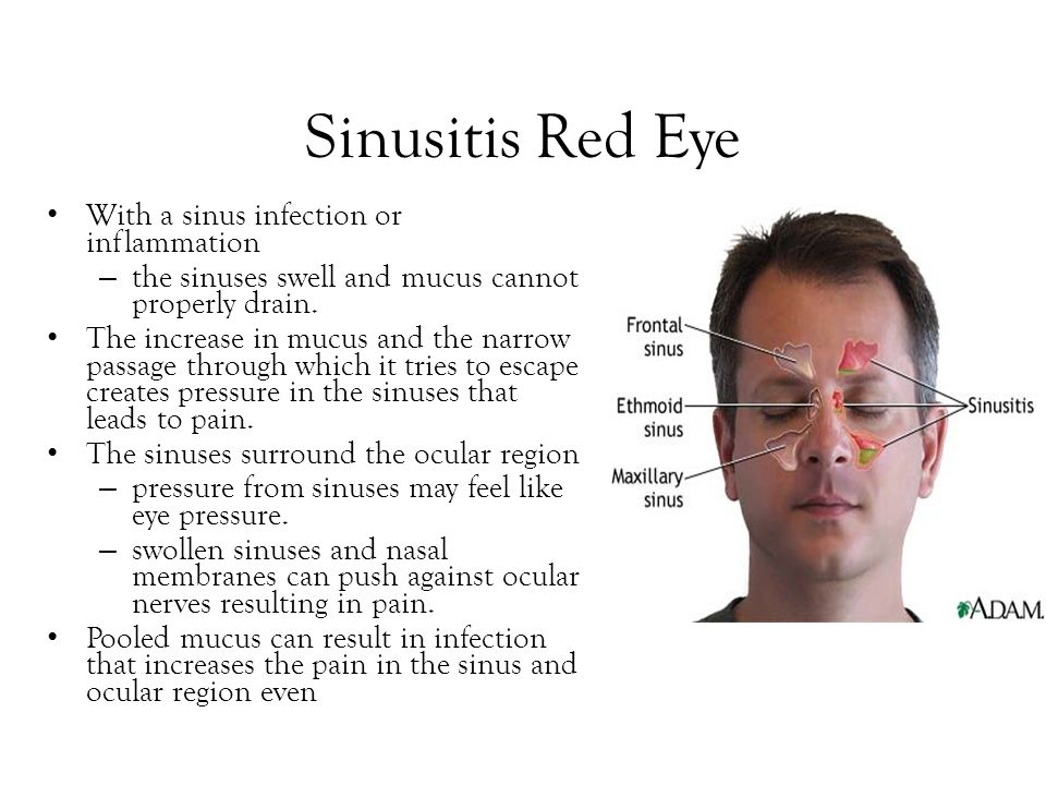Sinusitis Red Eye With a sinus infection or inflammation – the sinuses swell and mucus cannot properly drain. The increase in mucus and the narrow pas