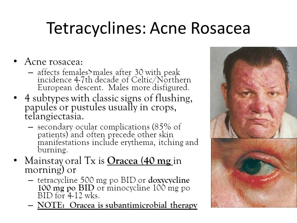 Tetracyclines: Acne Rosacea Acne rosacea: – affects females>males after 30 with peak incidence 4-7th decade of Celtic/Northern European descent. Males