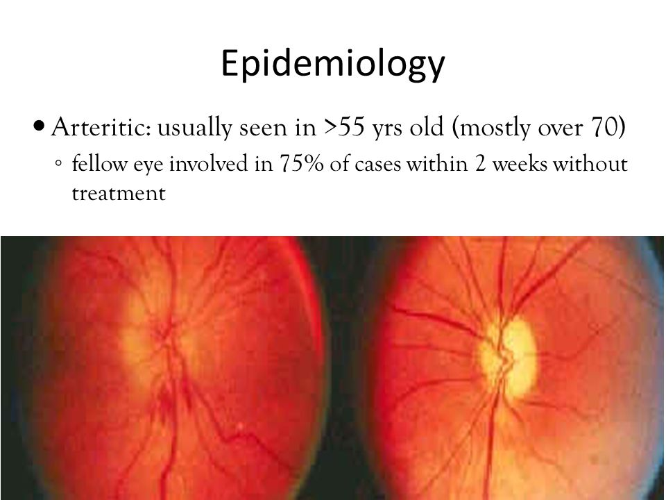 Epidemiology Arteritic: usually seen in >55 yrs old (mostly over 70) ◦ fellow eye involved in 75% of cases within 2 weeks without treatment