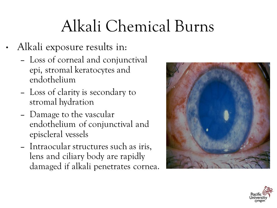 Alkali Chemical Burns Alkali exposure results in: – Loss of corneal and conjunctival epi, stromal keratocytes and endothelium – Loss of clarity is secondary to stromal hydration – Damage to the vascular endothelium of conjunctival and episcleral vessels – Intraocular structures such as iris, lens and ciliary body are rapidly damaged if alkali penetrates cornea.