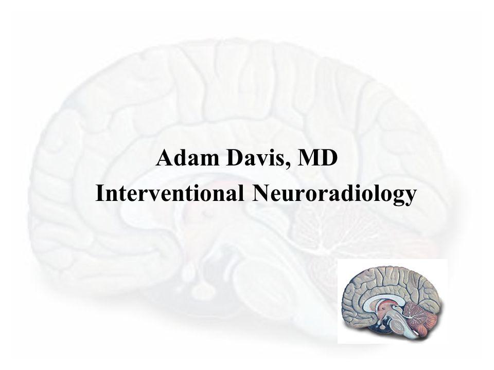 Adam Davis, MD Interventional Neuroradiology