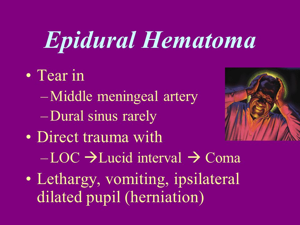 Tear in –Middle meningeal artery –Dural sinus rarely Direct trauma with –LOC  Lucid interval  Coma Lethargy, vomiting, ipsilateral dilated pupil (he
