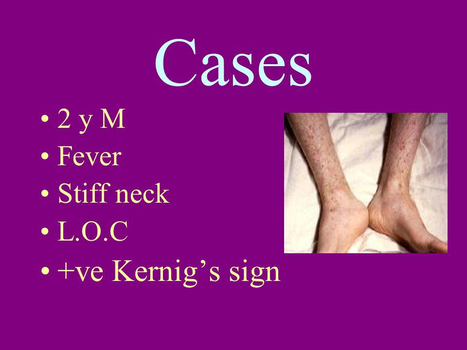 Cases 2 y M Fever Stiff neck L.O.C +ve Kernig's sign
