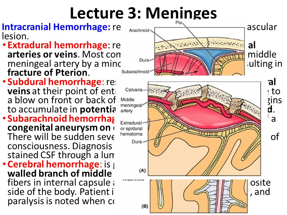 Lecture 3: Meninges Intracranial Hemorrhage: result from trauma or cerebral vascular lesion. Extradural hemorrhage: results from injuries to meningeal