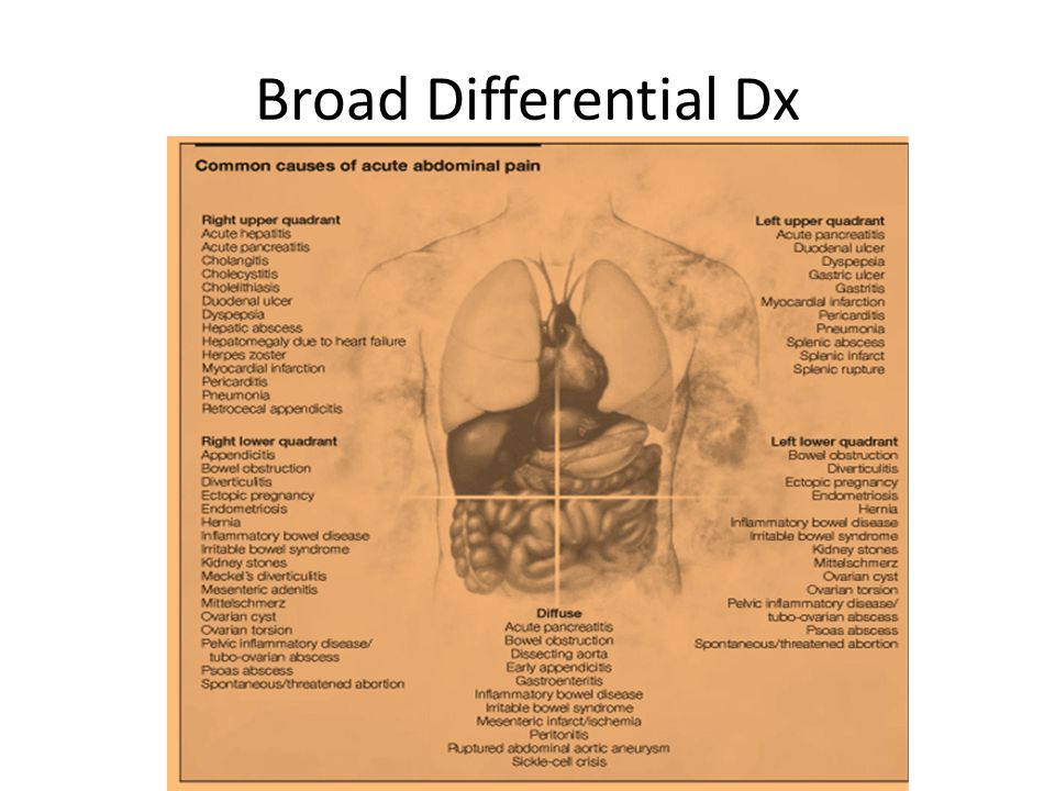 Summary Differential diagnosis for acute abdomen is lengthy Many presentations will not require admission or surgery Ischemic colitis, ruptured AAA, intestinal or ulcer perforation, and ectopic pregnancy are important causes not to be missed Common differentials include appendicitis, cholecystitis, obstruction, and ischemia, but will vary per population