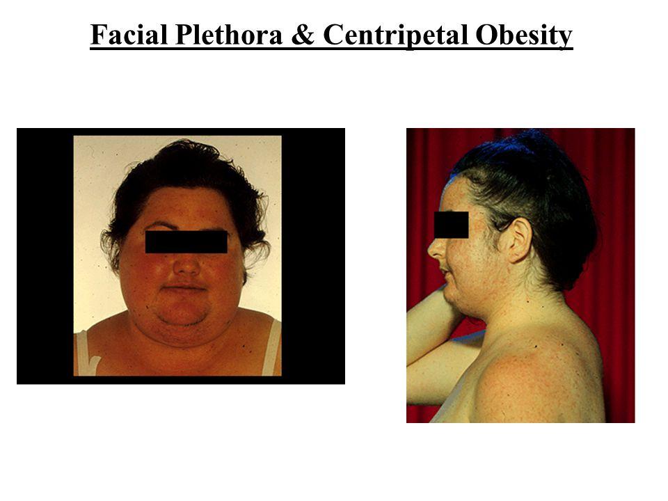 Facial Plethora & Centripetal Obesity