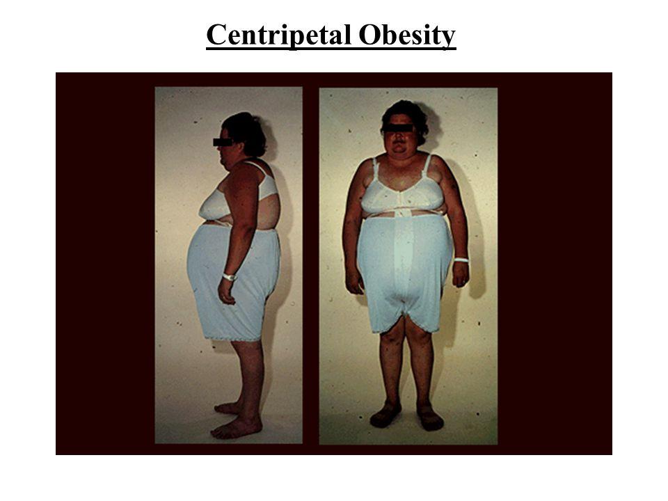 Centripetal Obesity