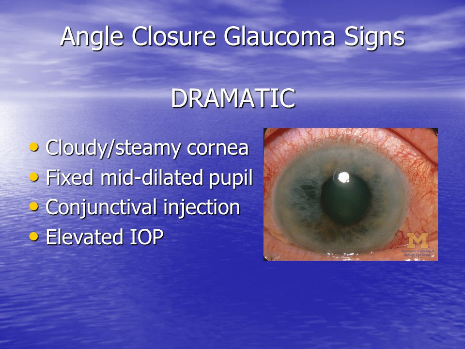 Angle Closure Glaucoma Signs DRAMATIC Cloudy/steamy cornea Cloudy/steamy cornea Fixed mid-dilated pupil Fixed mid-dilated pupil Conjunctival injection Conjunctival injection Elevated IOP Elevated IOP