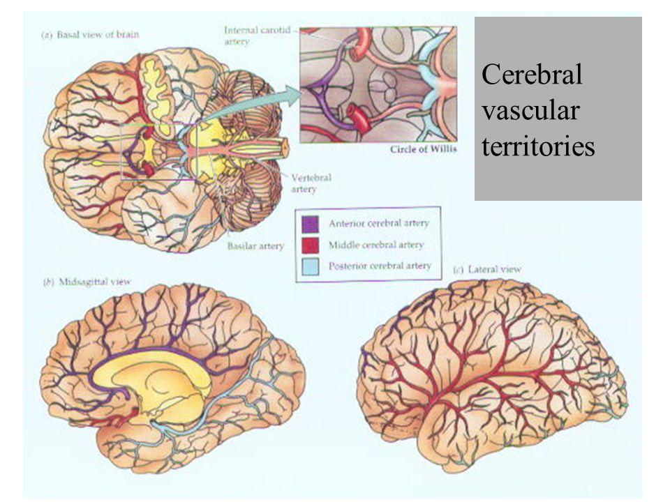 Cerebral vascular territories