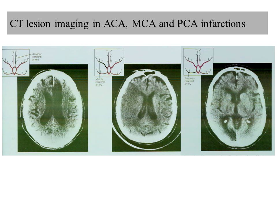 CT lesion imaging in ACA, MCA and PCA infarctions