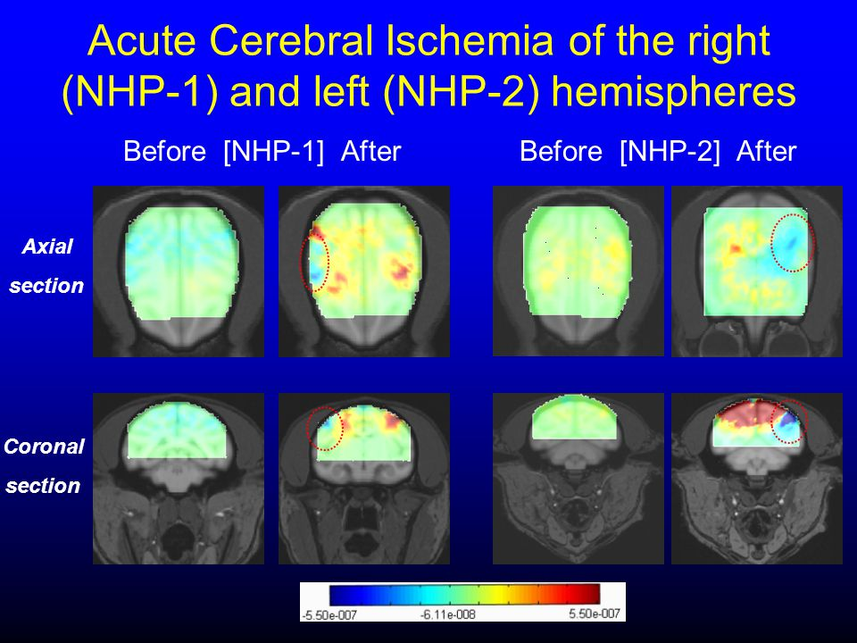 Acute Cerebral Ischemia of the right (NHP-1) and left (NHP-2) hemispheres Before [NHP-1] After Before [NHP-2] After Axial section Coronal section