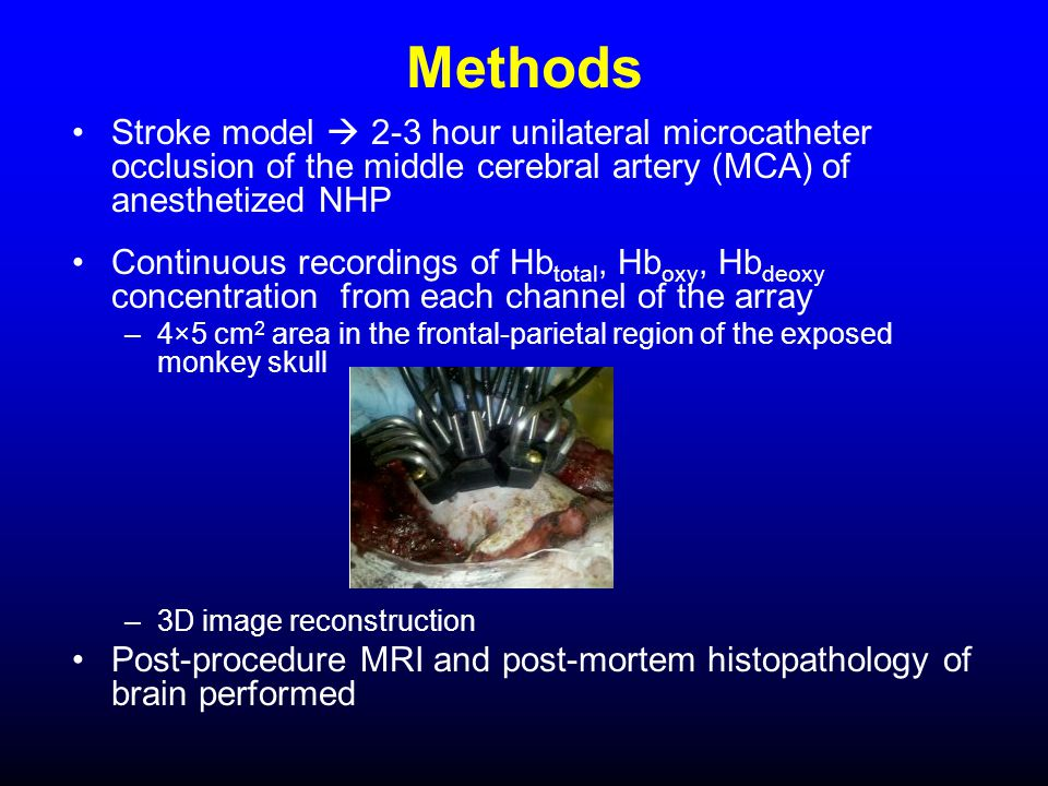 Methods Stroke model  2-3 hour unilateral microcatheter occlusion of the middle cerebral artery (MCA) of anesthetized NHP Continuous recordings of Hb total, Hb oxy, Hb deoxy concentration from each channel of the array –4×5 cm 2 area in the frontal-parietal region of the exposed monkey skull –3D image reconstruction Post-procedure MRI and post-mortem histopathology of brain performed