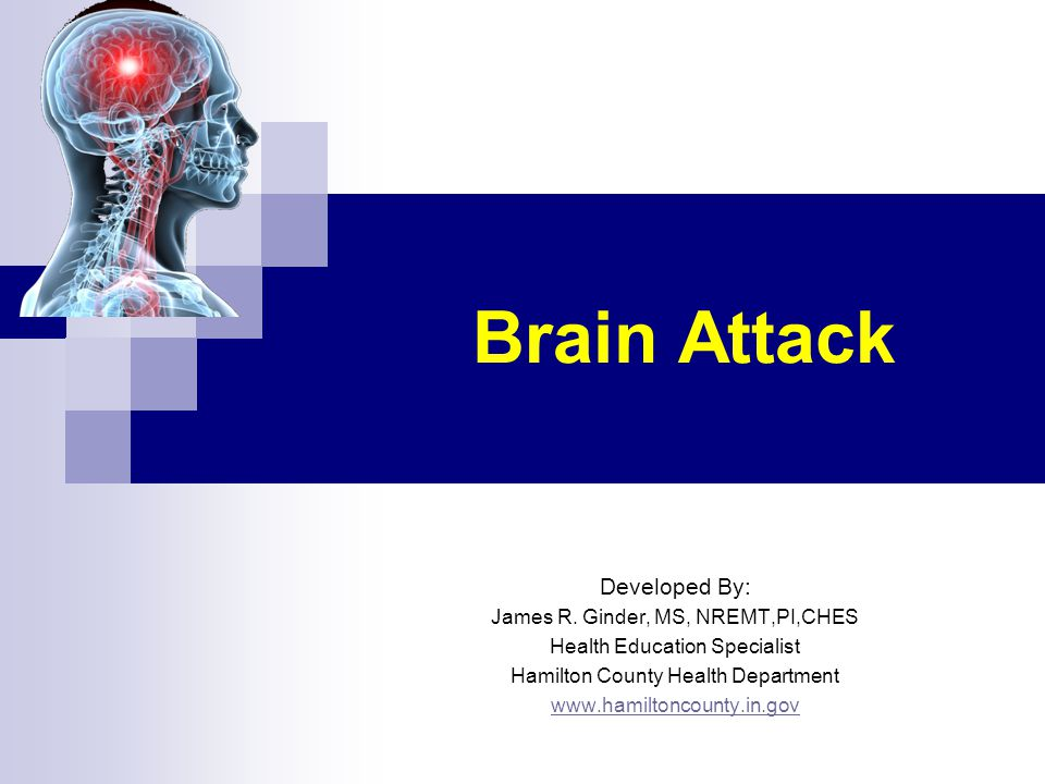 Brain Attack Developed By: James R. Ginder, MS, NREMT,PI,CHES Health Education Specialist Hamilton County Health Department www.hamiltoncounty.in.gov