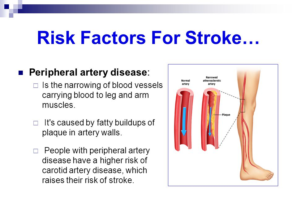 Risk Factors For Stroke… Peripheral artery disease:  Is the narrowing of blood vessels carrying blood to leg and arm muscles.  It's caused by fatty