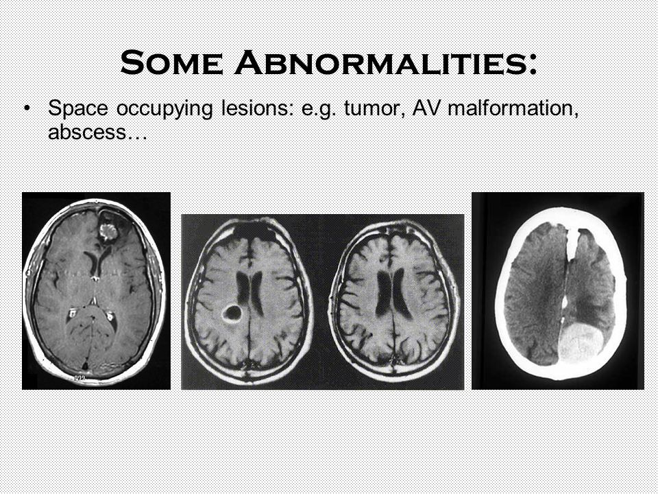 Some Abnormalities: Space occupying lesions: e.g. tumor, AV malformation, abscess…