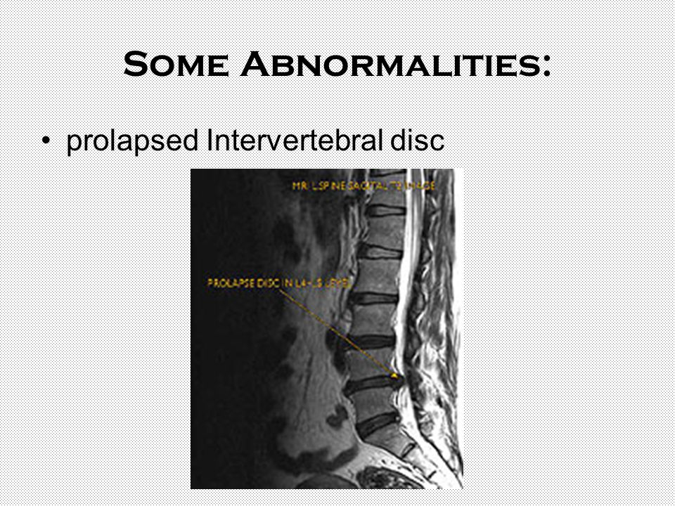 Some Abnormalities: prolapsed Intervertebral disc