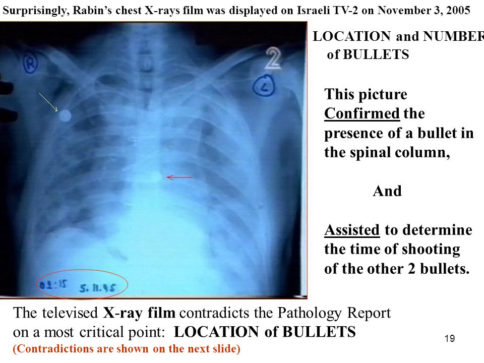 19 This picture Confirmed the presence of a bullet in the spinal column, And Assisted to determine the time of shooting of the other 2 bullets.