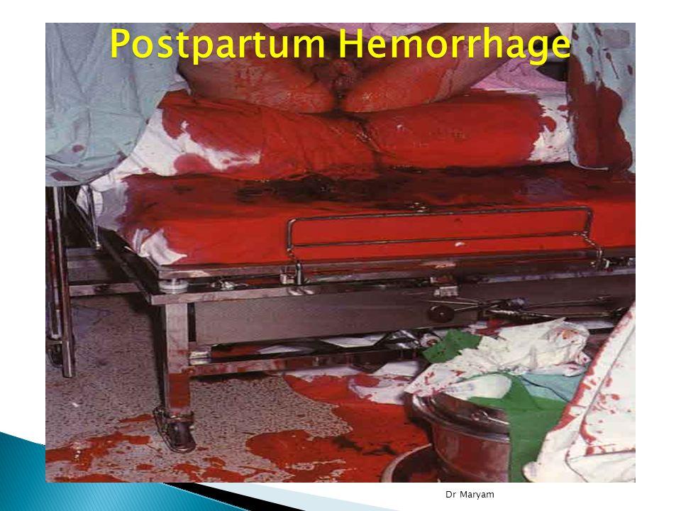 Postpartum Hemorrhage Dr Maryam