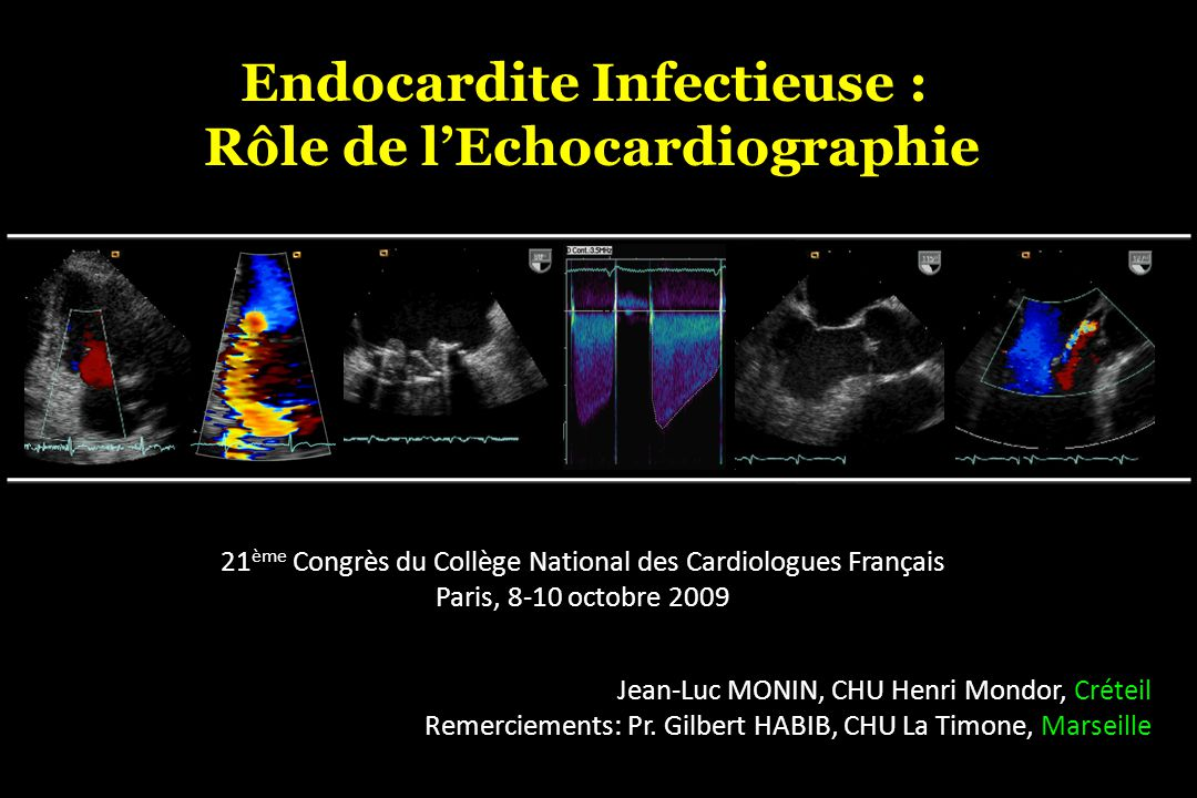 Henri Mondor Role of Echocardiography in Infective Endocarditis 1. Diagnosis 2. Management 2