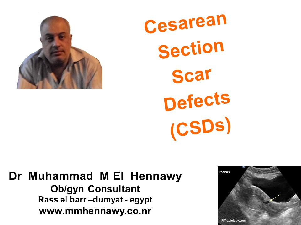 Cesarean Section Scar Defects (CSDs) Dr Muhammad M El Hennawy Ob/gyn Consultant Rass el barr –dumyat - egypt www.mmhennawy.co.nr