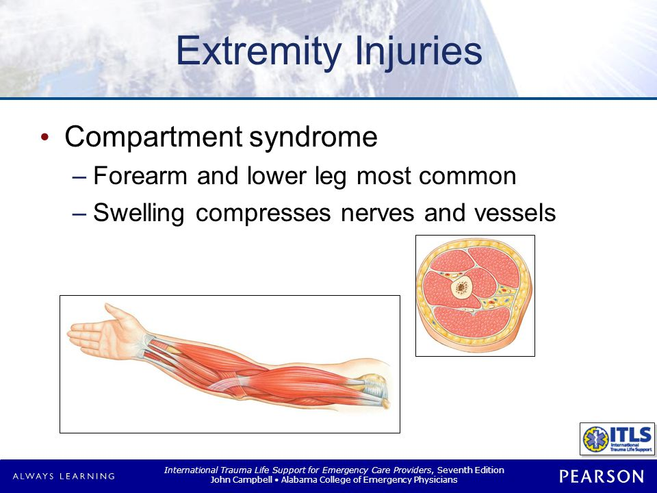 International Trauma Life Support for Emergency Care Providers, Seventh Edition John Campbell Alabama College of Emergency Physicians Extremity Injuries Compartment syndrome –Forearm and lower leg most common –Swelling compresses nerves and vessels