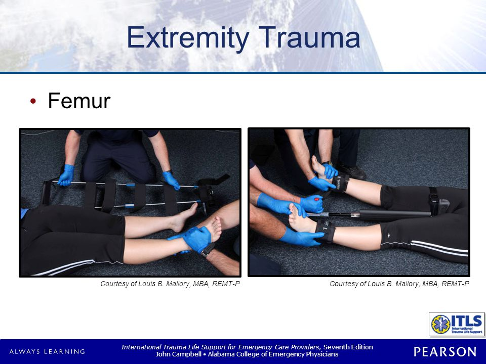 International Trauma Life Support for Emergency Care Providers, Seventh Edition John Campbell Alabama College of Emergency Physicians Extremity Trauma Femur Courtesy of Louis B.