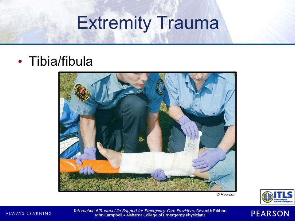 International Trauma Life Support for Emergency Care Providers, Seventh Edition John Campbell Alabama College of Emergency Physicians Extremity Trauma Tibia/fibula © Pearson