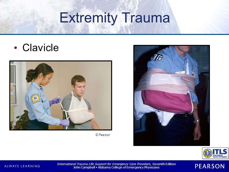 International Trauma Life Support for Emergency Care Providers, Seventh Edition John Campbell Alabama College of Emergency Physicians Extremity Trauma Clavicle © Pearson
